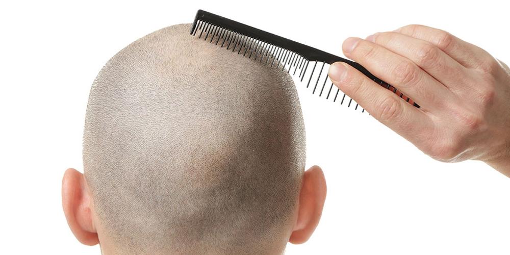 Erkek Tipi Saç Dökülmesi Nedir?